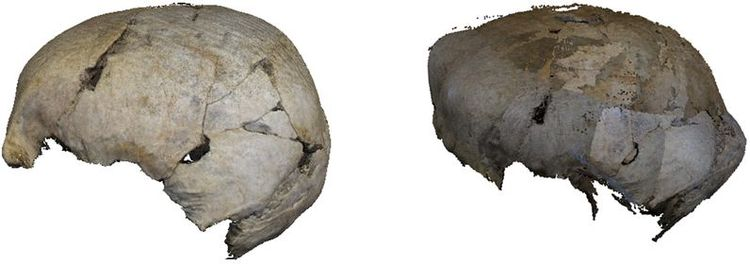 Results of a cranium with correct calibration (left) and incorrect calibration (right)